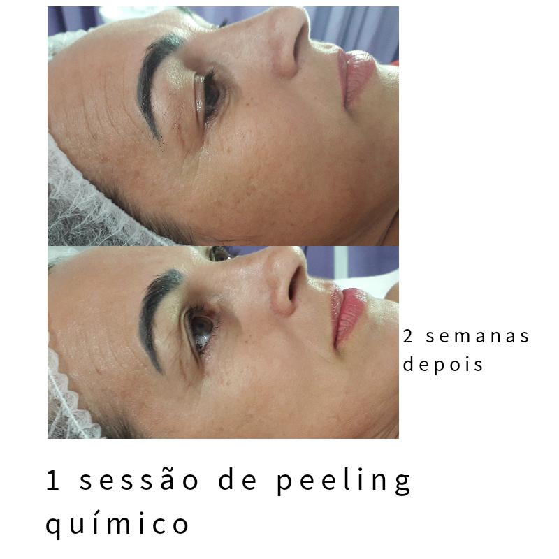Peeling quimico